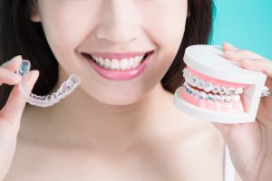 Close-up view of a young woman's mouth and she is holding a mouth model with metal braces and an Invisalign aligner in the other hand.