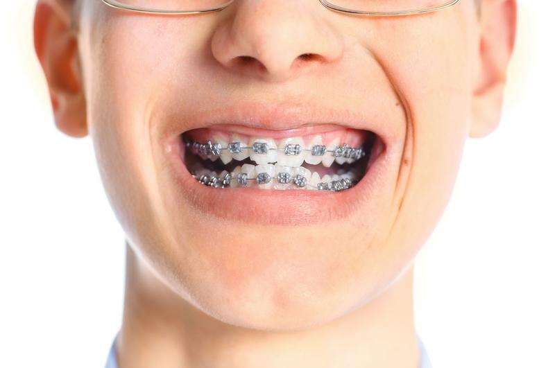 close-up view of a boy's braces
