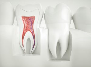 Models of the outside of a tooth and the inside of a tooth where a root canal happens