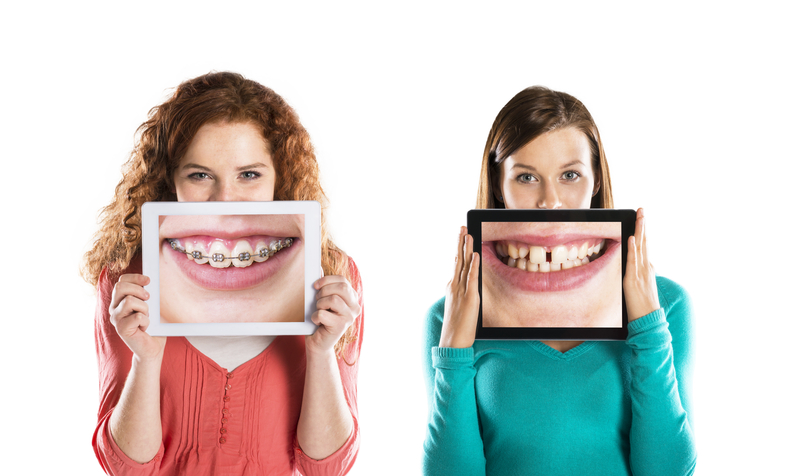 Two girls standing side-by-side that are both holding up photos in front of their face. One photo shows teeth that are crooked and the other shows teeth that are getting straightened with braces.