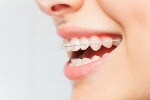 A close-up view of a person's mouth that has clear, ceramic braces on the teeth.