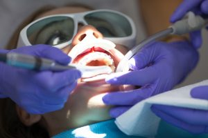Patient receiving a laser dentistry procedure.