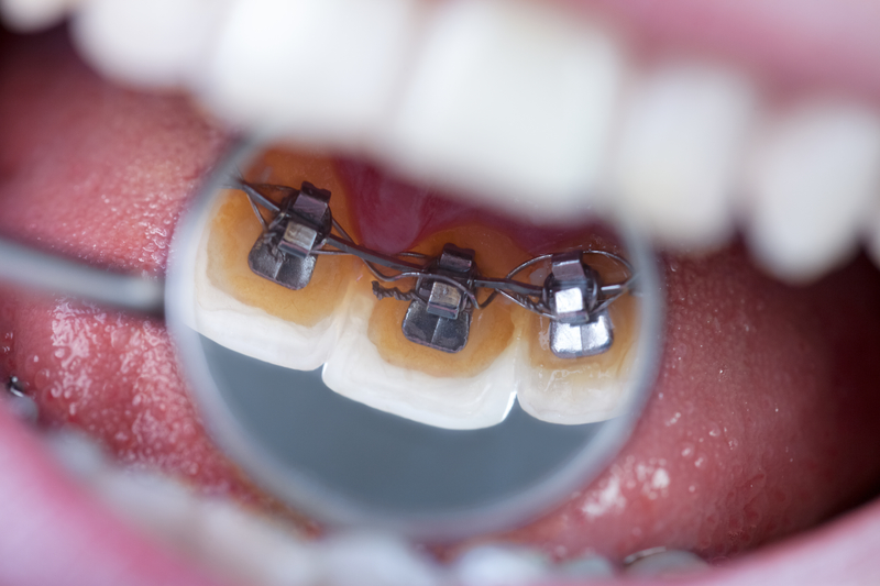 Close-up view of several teeth that have lingual braces placed on them