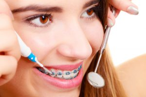 A young female teen that is smiling with metal braces as she has orthodontic tools by her mouth.