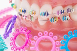 Model of the teeth with braces on them with colorful bands on the brackets. There are rubber band circles in front of the model.