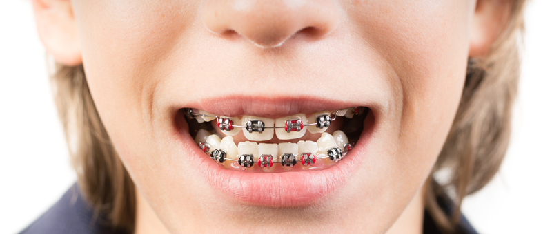Up close photo of child smiling with braces