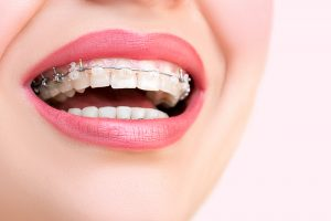 girl with ceramic braces