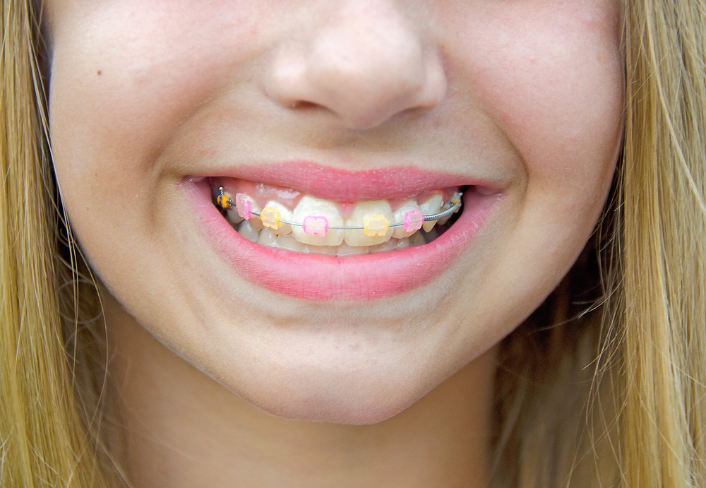 Clear Braces and Color Bands!