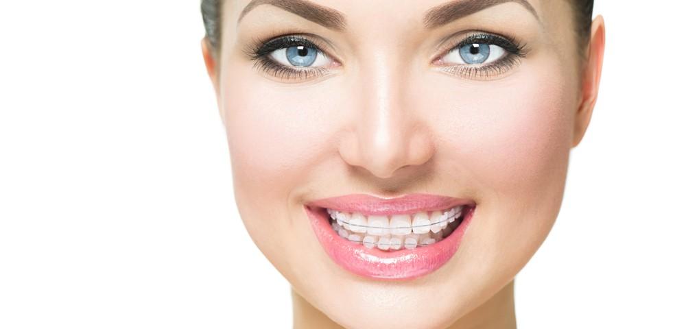 Clear ceramic braces