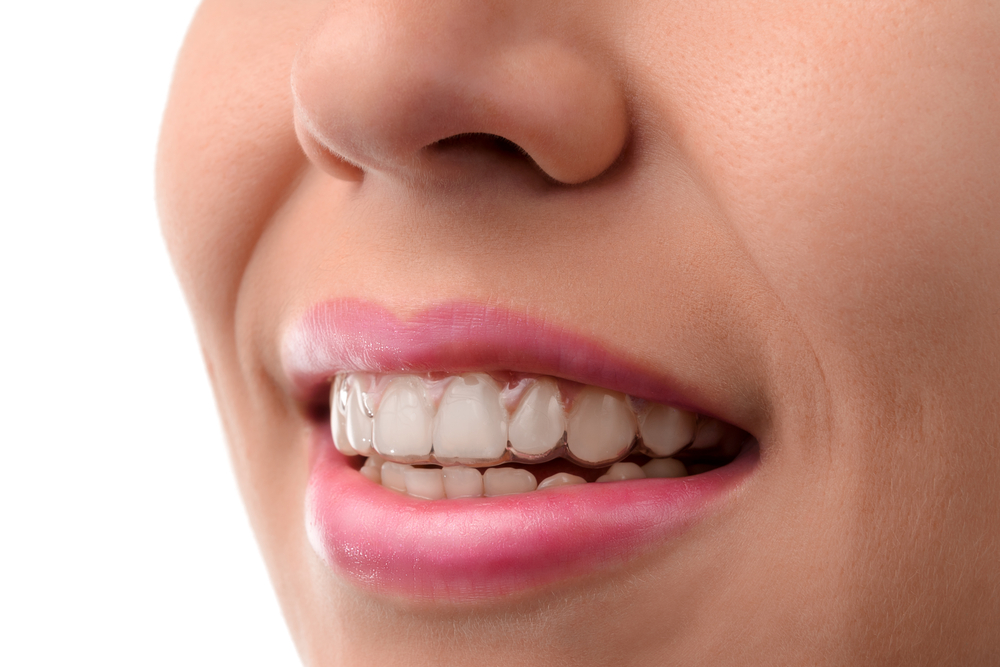 Types of Braces: Invisalign Teen