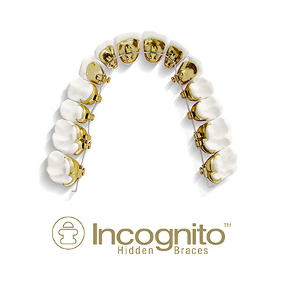 Types of Braces: Lingual (Incognito)