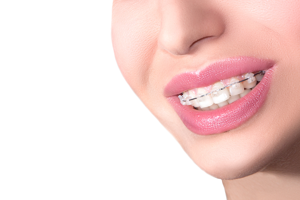 Clarity ADVANCED Ceramic Braces