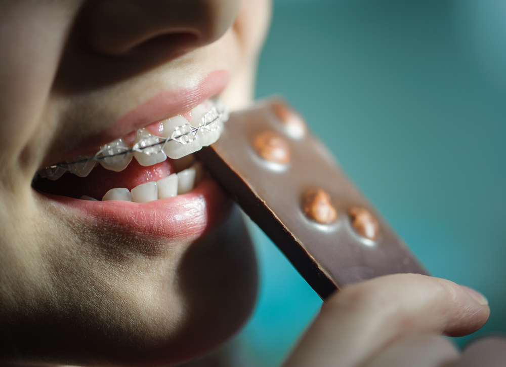 how to avoid cavities with braces